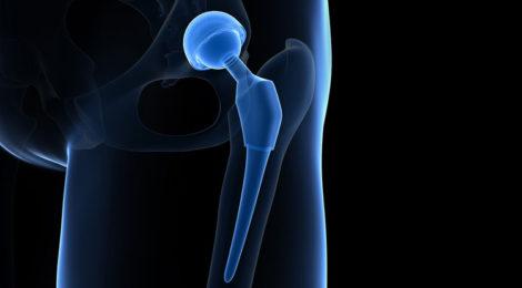 Protesi d'anca parkinson