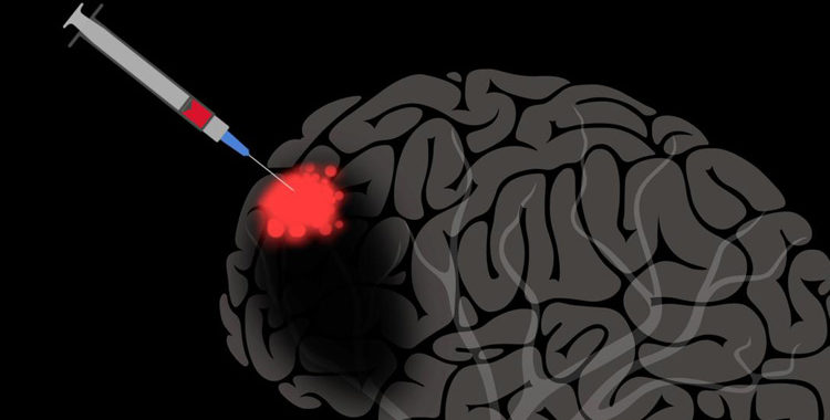 riparazione dei neuroni nel Parkinson