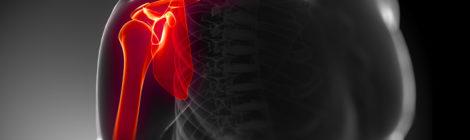 dolore alla spalla