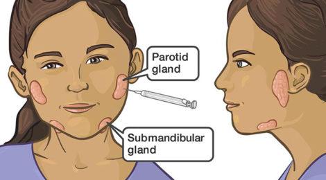 Come si cura la scialorrea